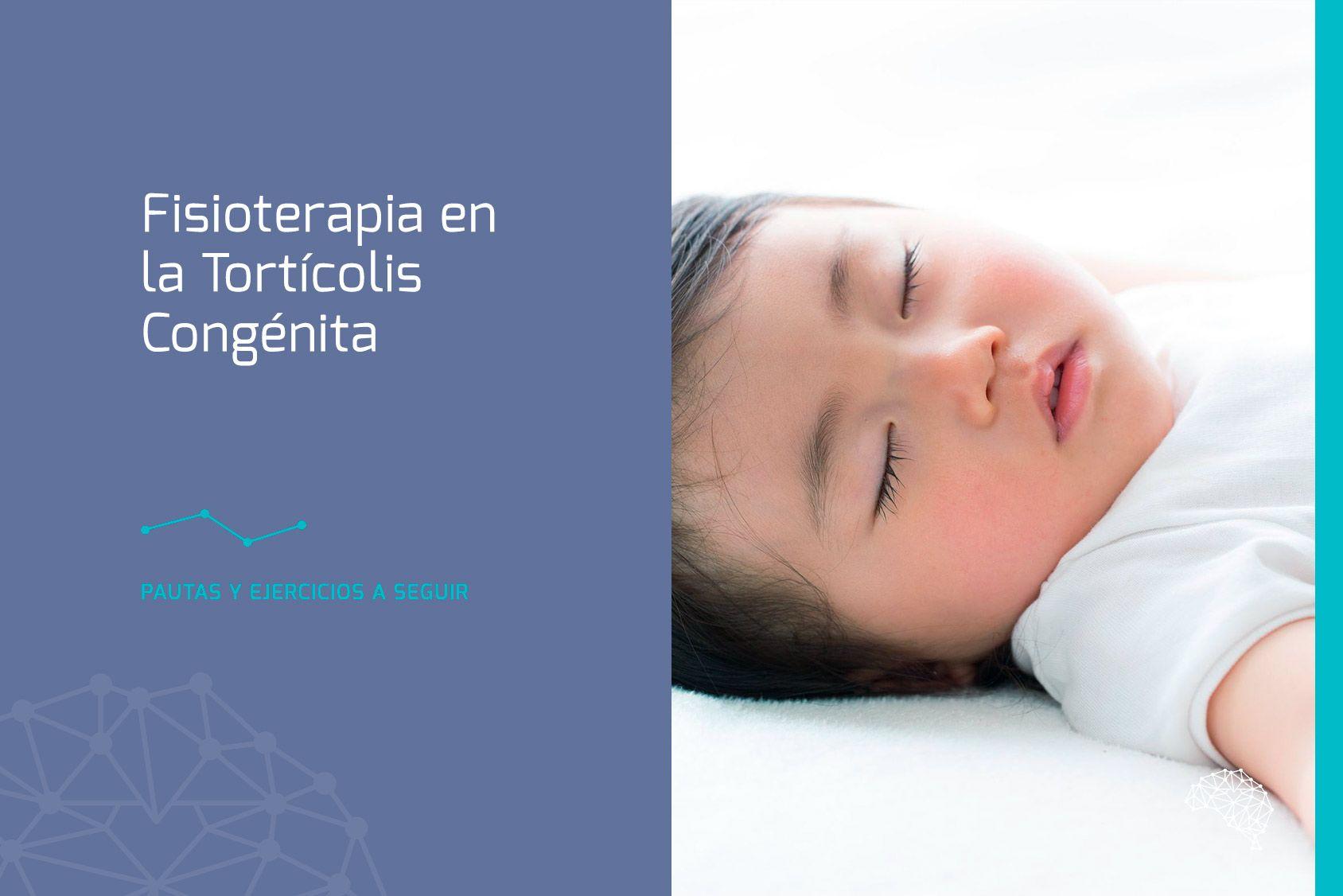 torticolis congenita